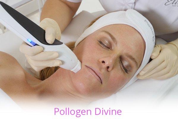 Pollogen Divine with Elite Laser Aesthetics